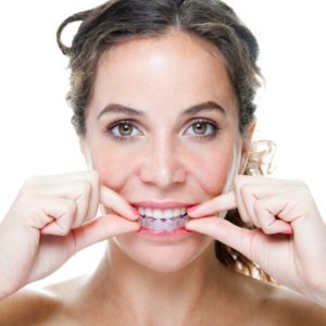 woman putting invisalign aligner in mouth